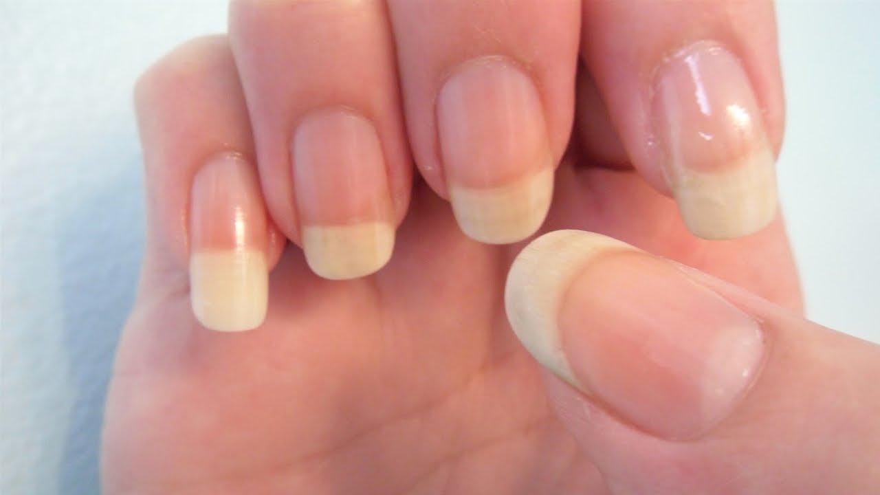 Грибок ногтей после отпуска. Что делать? | О самом главном