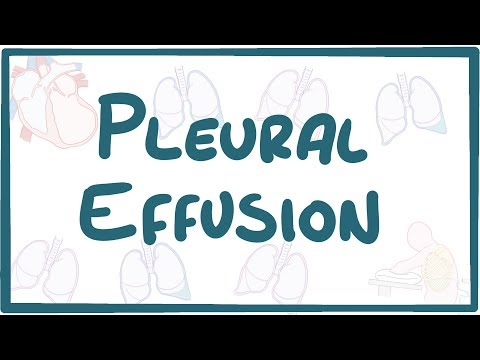 Pleural Effusion - causes symptoms diagnosis treatment pathology