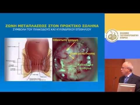 Κονδυλώματα πρωκτού (ιός HPV) & θηλώματα.