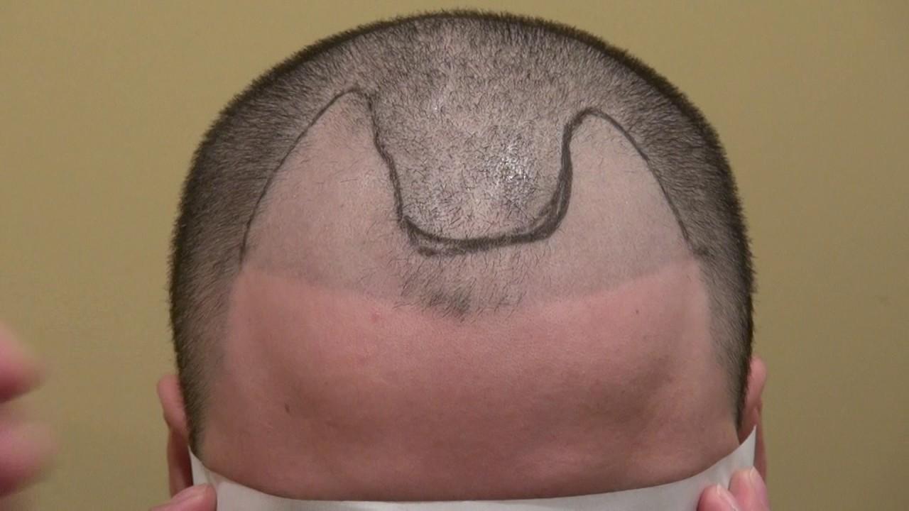 Micropigmentation Tattoo Hairline Repair by FUE Hair
