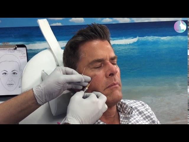 Tear trough (infraorbital hollow) dermal filler
