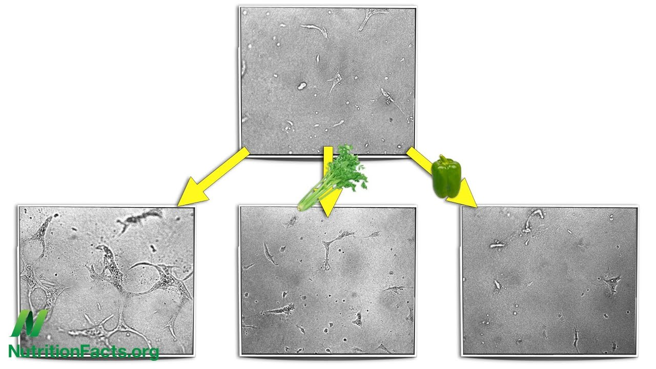Anti-Angiogenesis: Cutting Off Tumor Supply Lines
