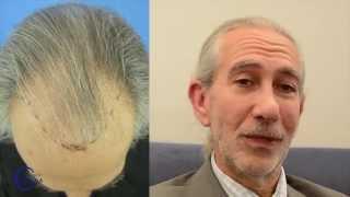 Témoignage après traitement de la calvitie par injection de cheveux