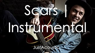 Scars - James Bay (Acoustic Instrumental)