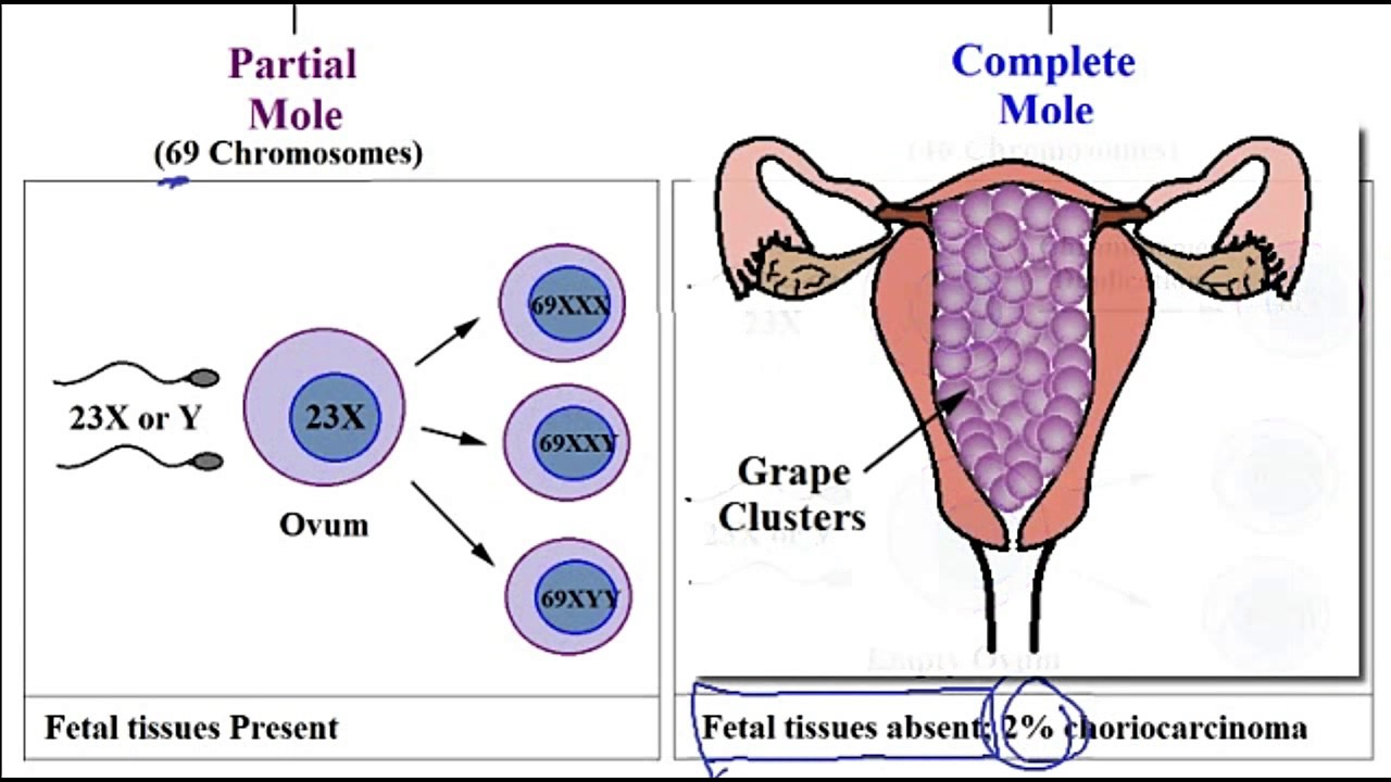 hydatidiform mole This page includes the following topics and synonyms: hydatidiform mole,  hydatid mole, molar pregnancy.