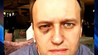 Навальному сделали операцию на глаз