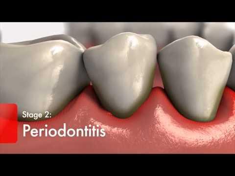 Diabetes and Gum Disease   Video - Diabetics High Risk for Oral Health Problems   Colgate3