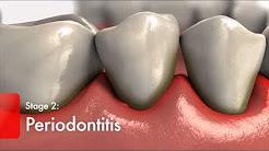 hqdefault - Teeth Diabetes Type 2