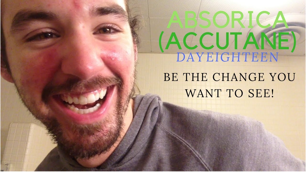 accutane cost without insurance 2015