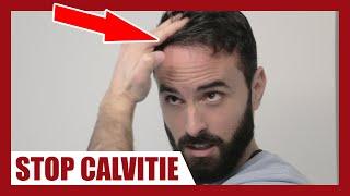 CALVITIE : Comment appliquer correctement le MINOXIDIL afin de la stopper ?