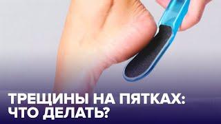 Почему ТРЕСКАЮТСЯ ПЯТКИ Правила ухода за ногами