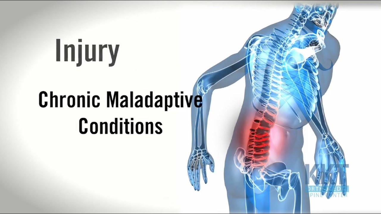腰痛、下背痛、肩頸痠痛看哪科?疼痛問題該怎麼辦?如何治療。美國新科技KKT聲波動力平衡系統。精準醫學 ...