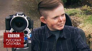 Смертельно больной британец получил необычную камеру
