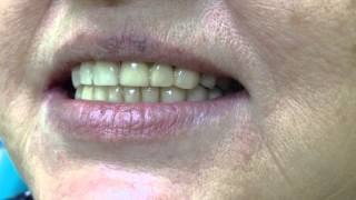 ортопедическая стоматология. металлокерамические коронки ,съемный протез(Сурайкин Илья