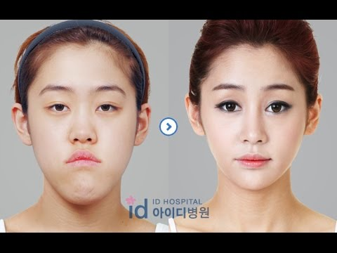 [id hospital review] before and after plastic surgery in ...