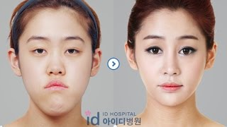 Id Hospital Review And After Plastic Surgery Korea