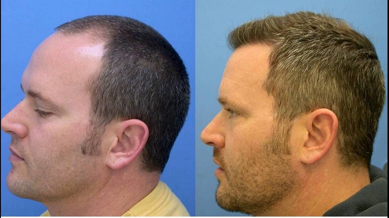 What Are the Measures of FUE Hair Transplantation?