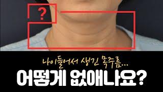 40대 50대 목주름 고민, 목주름수술로 해결 가능? …