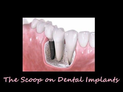 The Scoop On Dental Implants