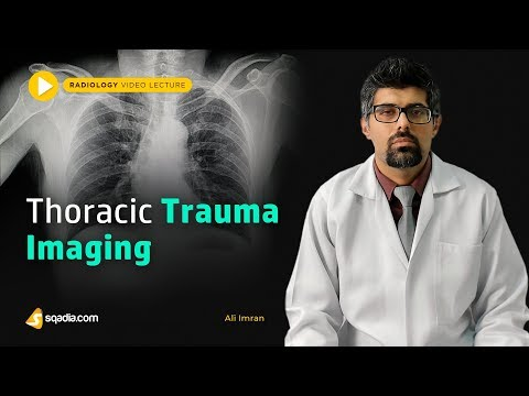 thoracic-trauma-imaging-|-basic-radiology-|-online-lectures-|-v-learning-|-sqadia.com