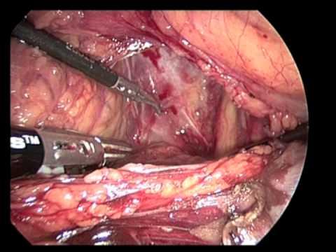 big ovarian cyst symptoms