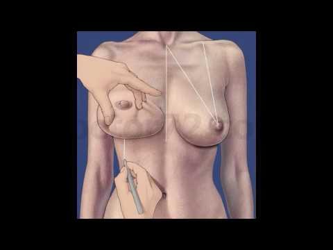 Киста молочной железы: симптомы, лечение, фото. Как лечить