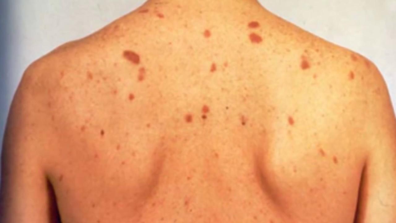 Púrpura síntomas del tratamiento de