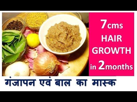 7cm in 2month HAIR GROWTH   काले लम्बे घने बालों के लिए   Stop HAIR LOSS - Baldness Hair Mask