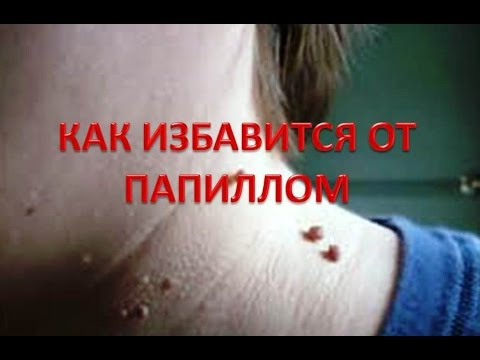 Папилломы на головке - впч у мужчин, фото, вирус человека