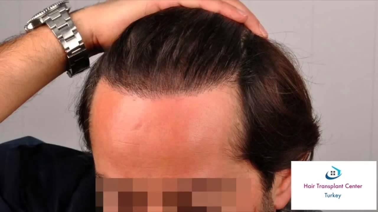 Doctor Koray Asmed www.hairtransplantcenter-turkey.com FUE Hair Transplant Turkey Istanbul - YouTube