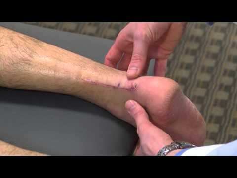 Achilles tendon heals faster with new surgical procedure | Ohio State Sports Medicine