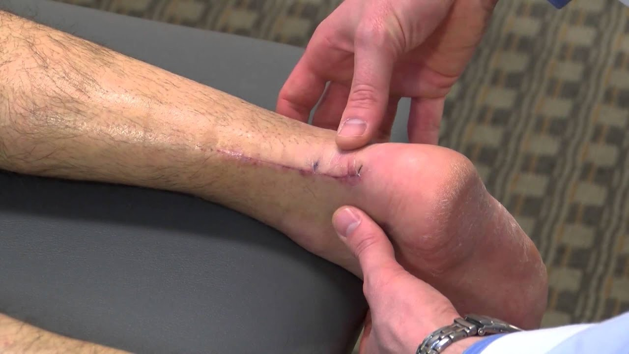 Image result for Achilles Tendon- Care and Repair