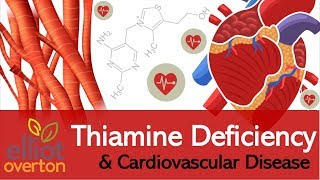 Vitamin B1 (Thiamine) Deficiency: Cardiovascular & Circulatory Diseases