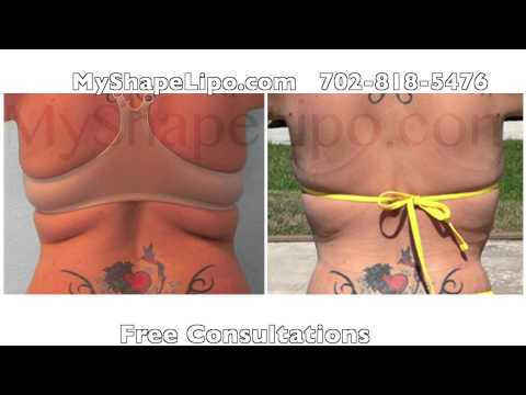 Liposuction and Fat Transfer Before and After Photos from MyShape Lipo, Trevor Schmidt PA-C