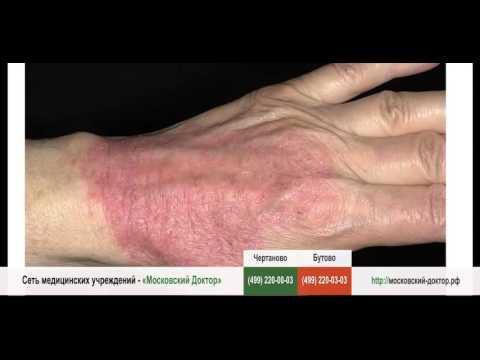 Аллергический дерматит - симптомы и лечение