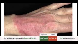 видео Аллергический дерматит