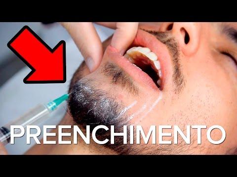 Harmonização Facial - Preenchimento do Queixo - Doutor Beleza