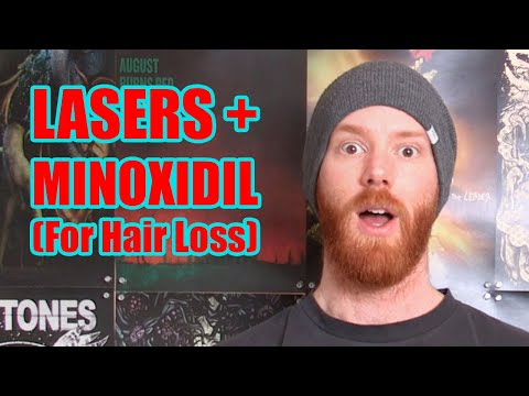 lllt-+-minoxidil-hair-regrowth-results-(so-far)