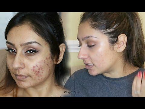 Vitamins for clear skin No more acne cystic acne   Raji Osahn