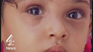 Gaza conflict: eyes that symbolise suffering of children | Channel 4 News