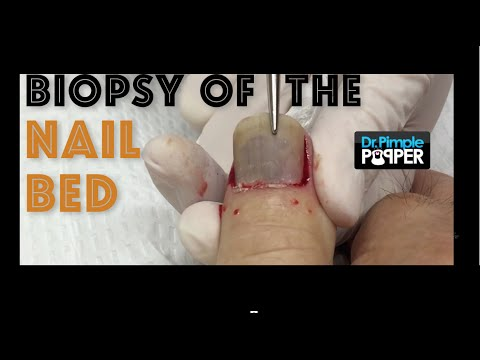 Biopsy of the nail bed with removal of the nail plate: Nail Avulsion