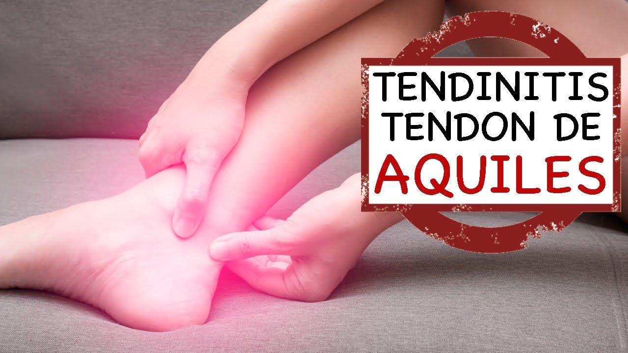 Tendinitis del Tendón de Aquiles