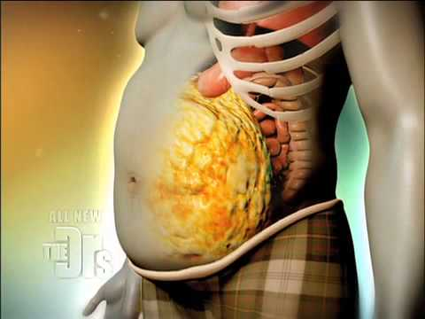 What Causes a Beer Belly Medical Course