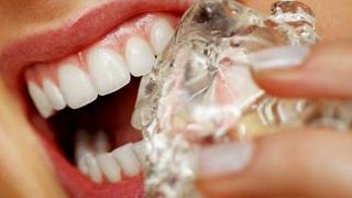 «Եթե ցավում է   » Ատամների գերզգայունություն