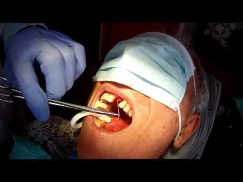 "#6 Implant Infection Removal of #9 Implant & CB-""WP"" Reconstruction."