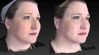 Rhinoplasty 3D Before and After-14