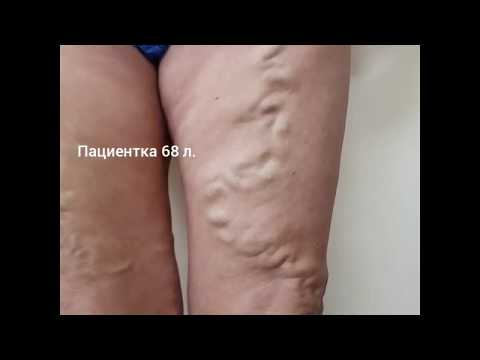 Хирургическое удаление расширенных варикозных вен ног. Лечение варикоза методом минифлебэктомии.
