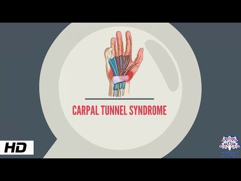 CARPAL TUNNEL SYNDROME, Causes, Signs and Symptoms, Diagnosis and Treatment.