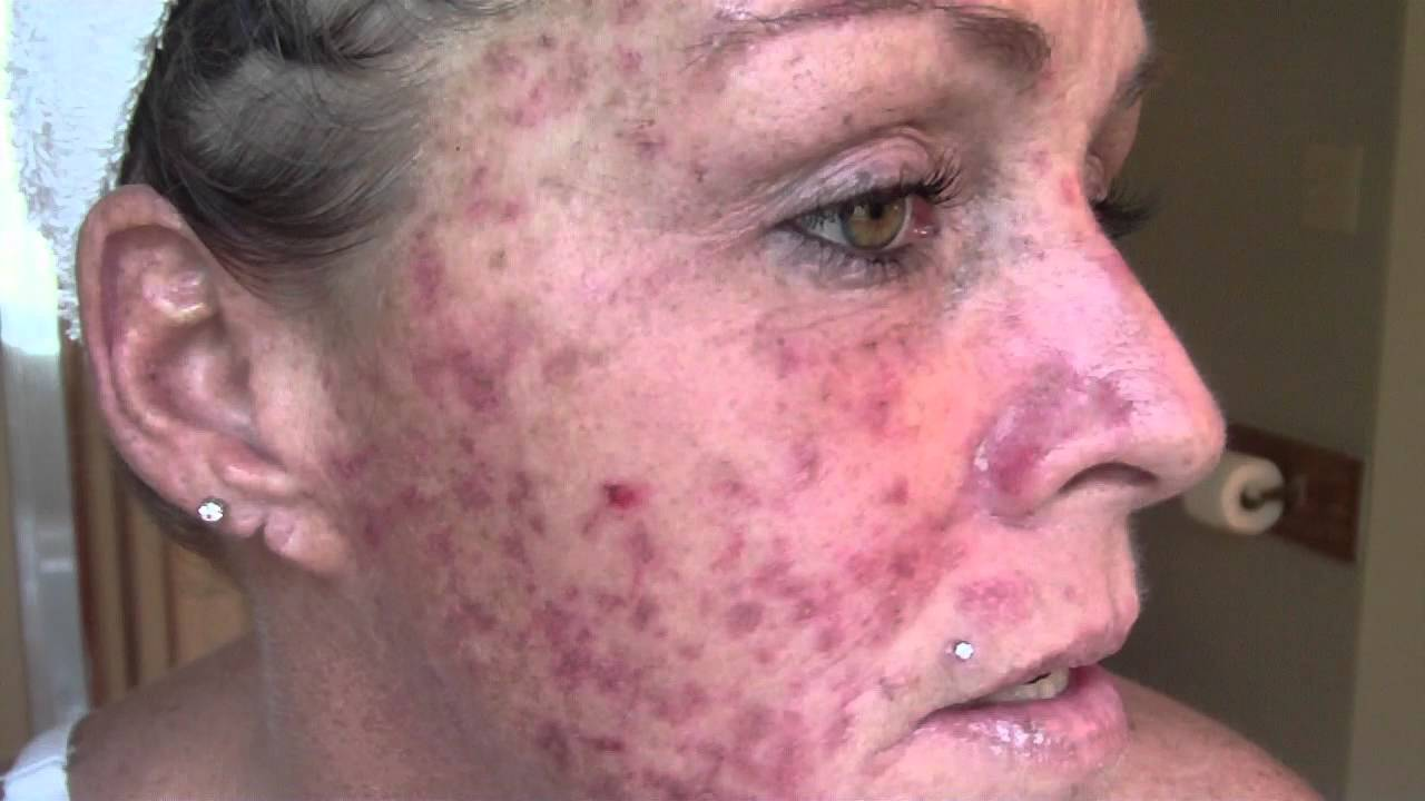 High Quality Skin Cancer..... My Vlog/Journal Treatment W/ EFUDEX Vid#9   YouTube Home Design Ideas