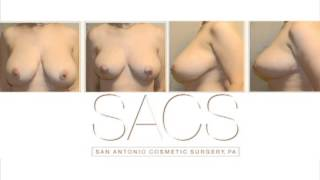 Breast Reduction Before and After Thumbnail